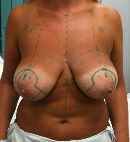 specialiste chirurgie esthetique Sarreguemines ville