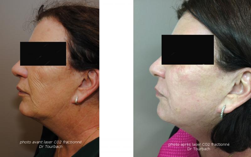 Traitement du visage par laser médical et peeling en Belgique