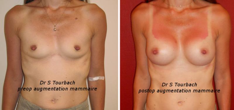 Prix : Augmentation mammaire - Multiesthetiquefr