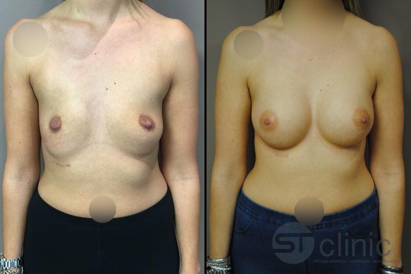 Information sur laugmentation mammaire -